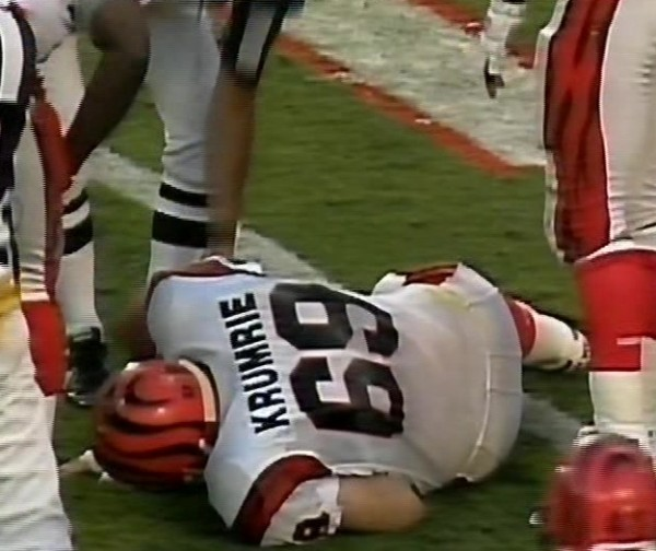 tim krumrie leg worst football injury ever 2015