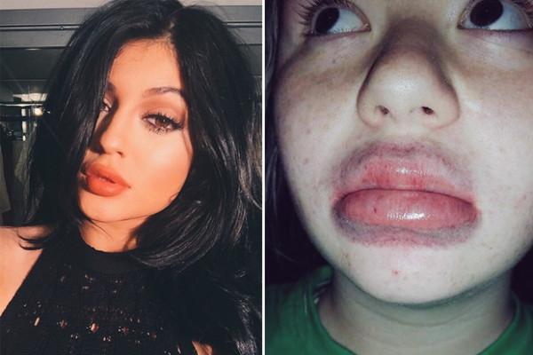 kylie jenner lips challenge no statement 2015 kris jenner