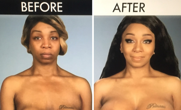tiffany pollard before after botched boob job 2015