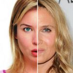 renee zellweger celebrities who havent aged well 2015