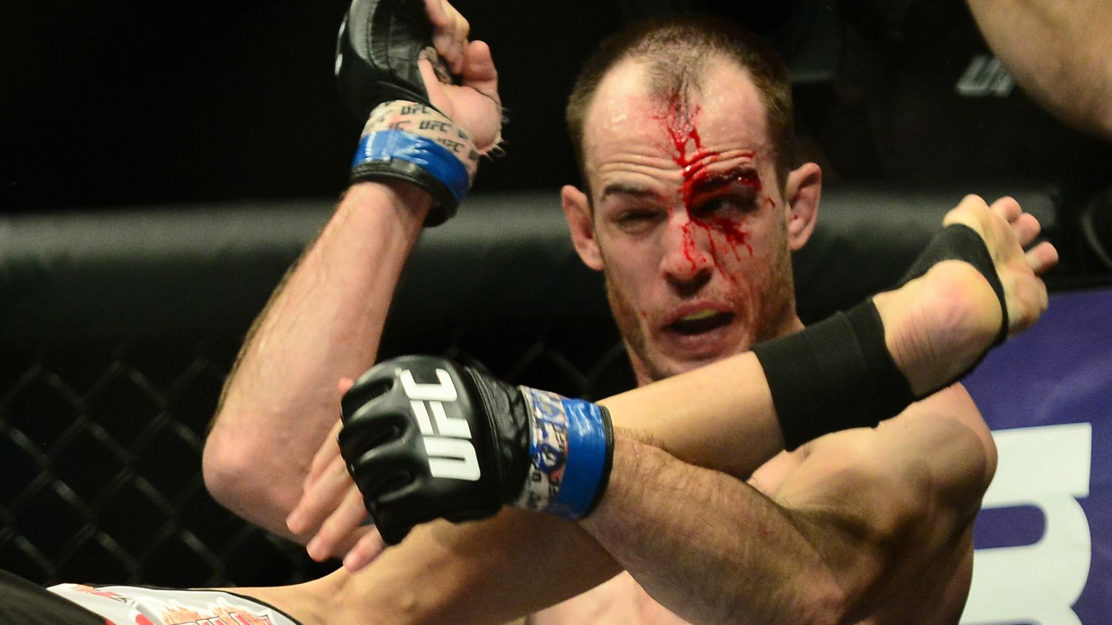 cole miller bloodied up cut from max holloway ends ufc fight night 60 20115