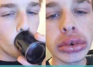 kylie jenner lips challenge not healthy 2015