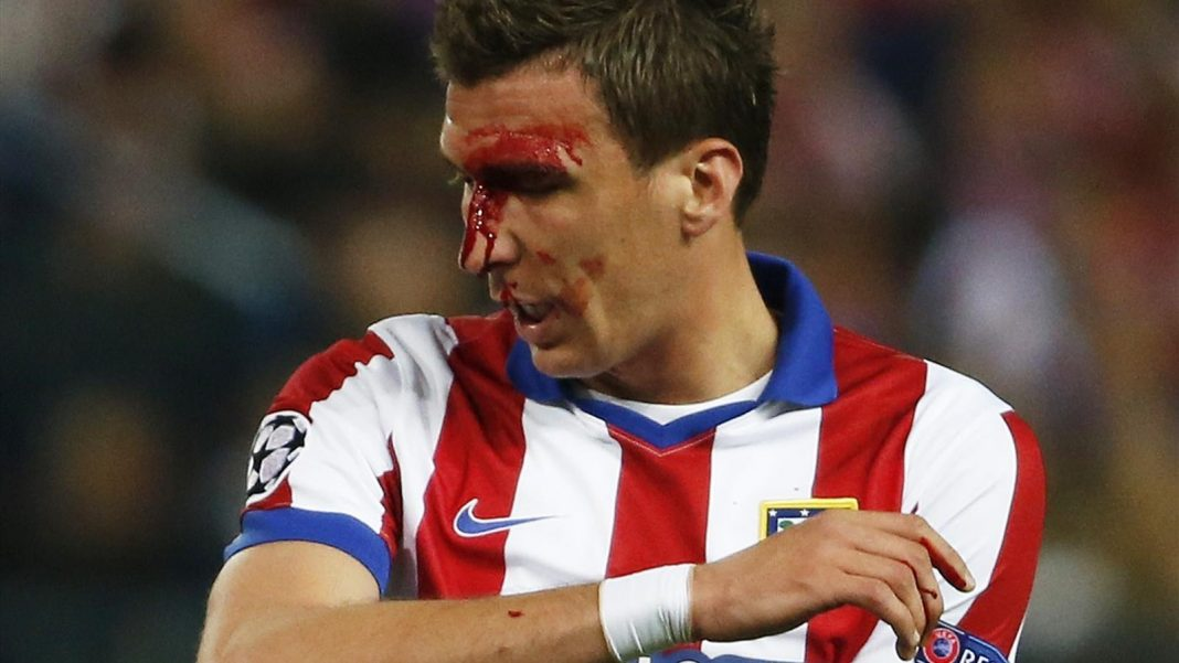 mario mandzukic bloodied up for champions league soccer 2015