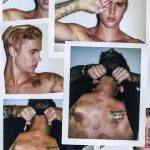 justin bieber cupping spots interview 2015 gossip