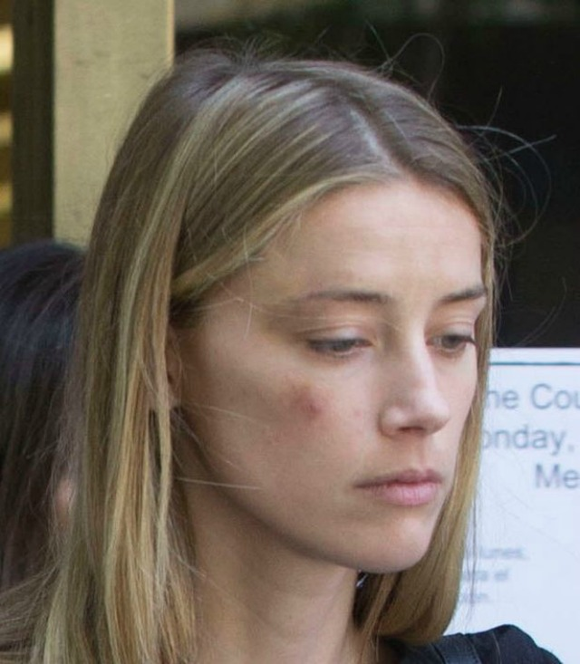 amber heard bruised face