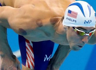 michael phelps bring ancient cupping into mainstream 2016 images