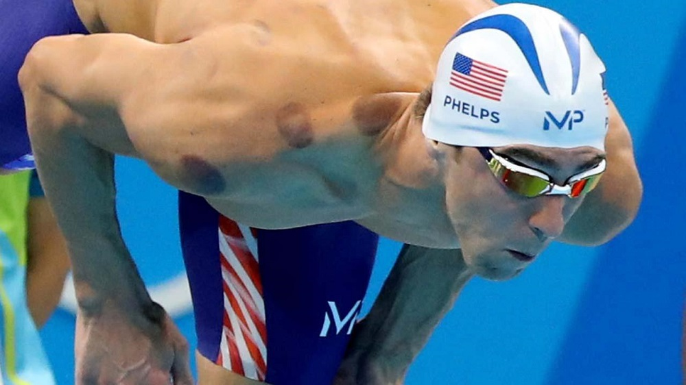 Michael Phelps brings ancient cupping to Rio Olympics 2016 images