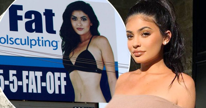 kylie jenner coolsculpting billboard