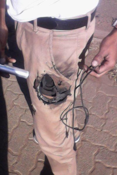 mans gets burned pocket hole from samsung note 7