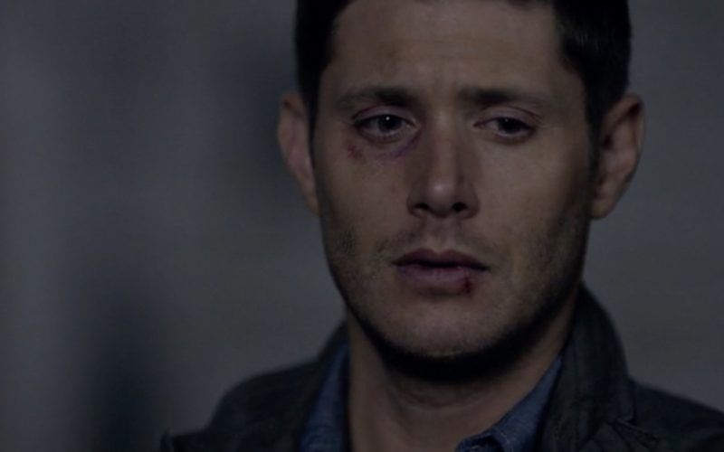 dean winchester beaten up eye supernatural