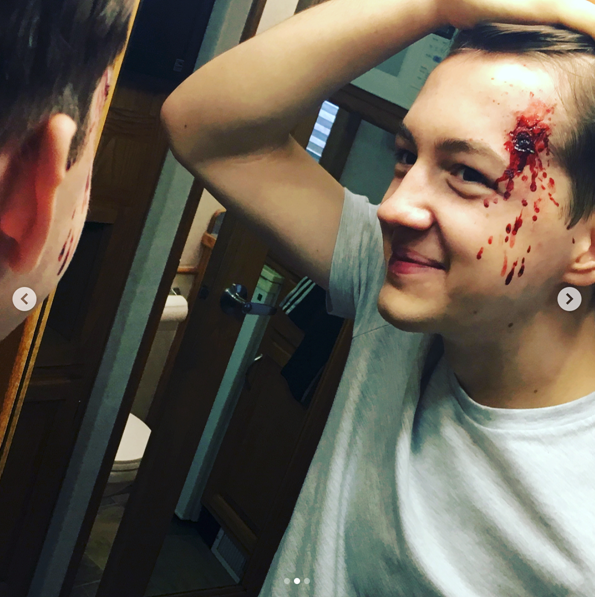 seth isaac johnson with bullet hole injury supernatural