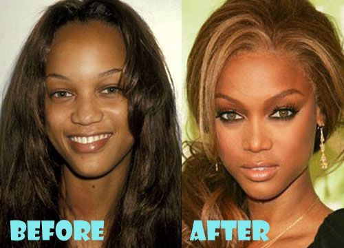 tyra banks before after nose job