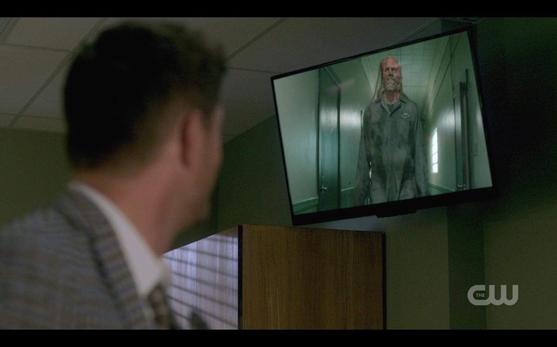 Dean winchester sees hatchetman on hospital screen spn 1404