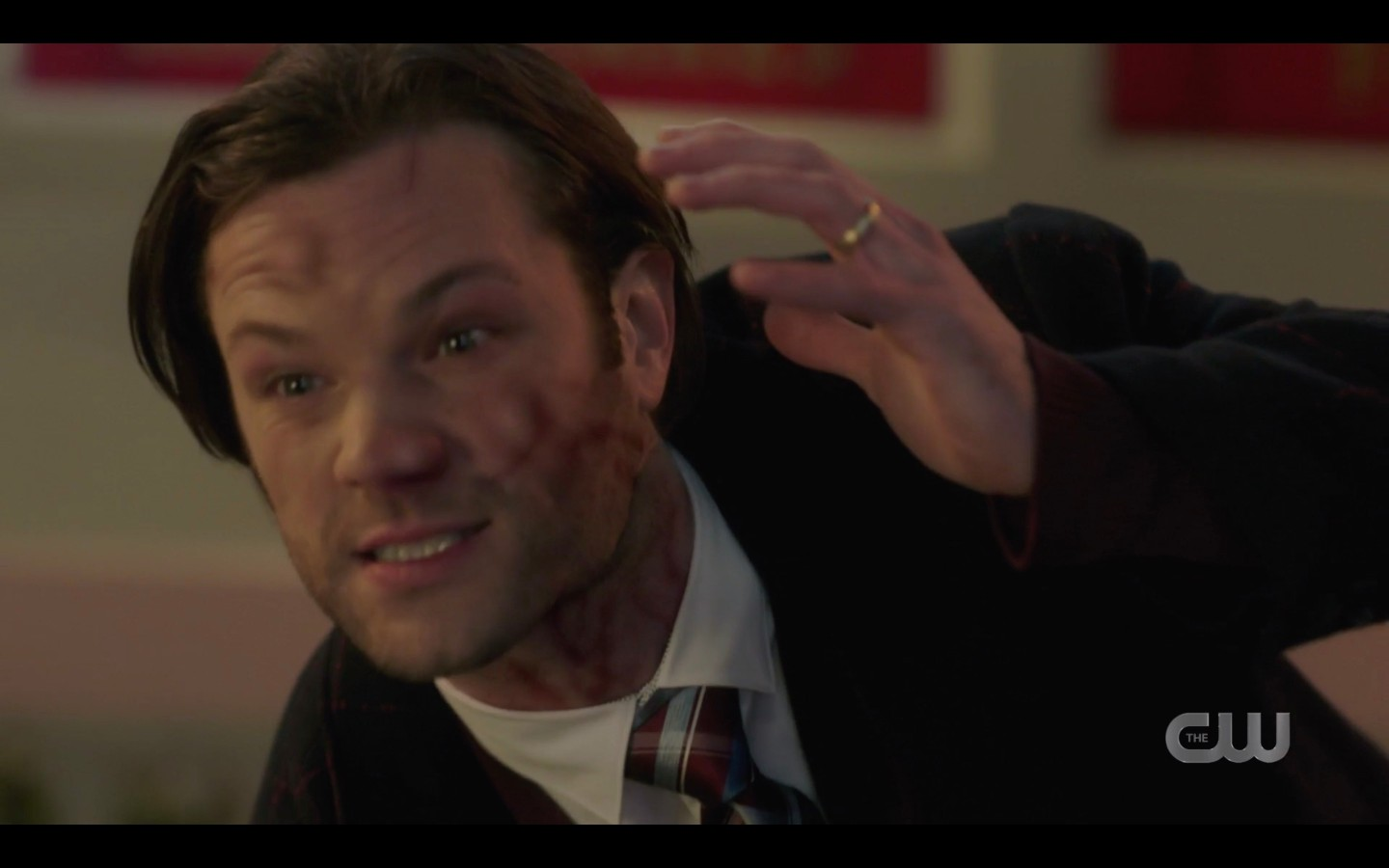 Sam Winchester with distorted blotchy face spn 1415