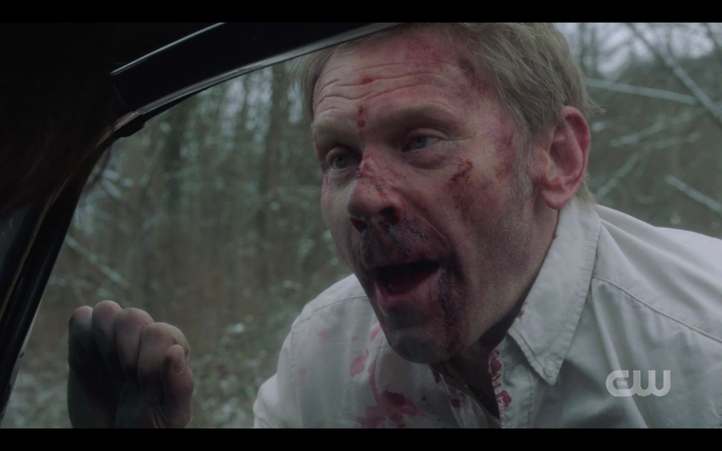 SPN 14.17 Mark Pellegrino Nick bloody face from choking out Sam